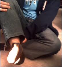 Pic of idiot with his sock on fire.